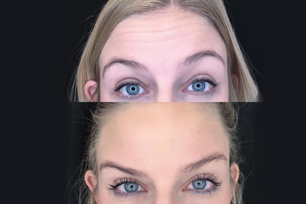 Botox Vs. Dysport: Which Should You Choose?