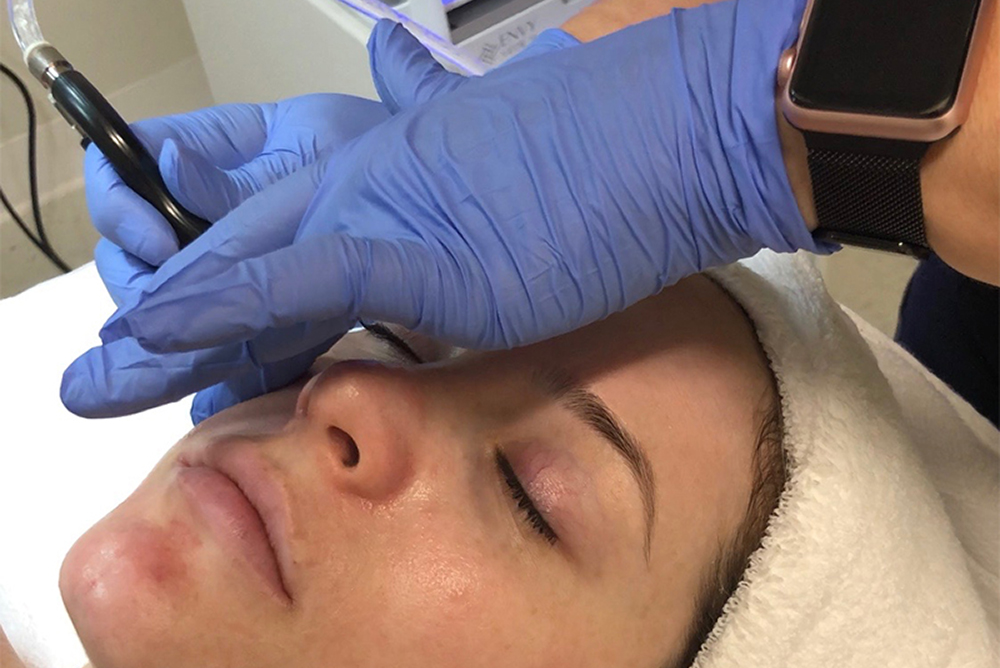 New Treatment Alert – Silk Peel Dermal Infusion
