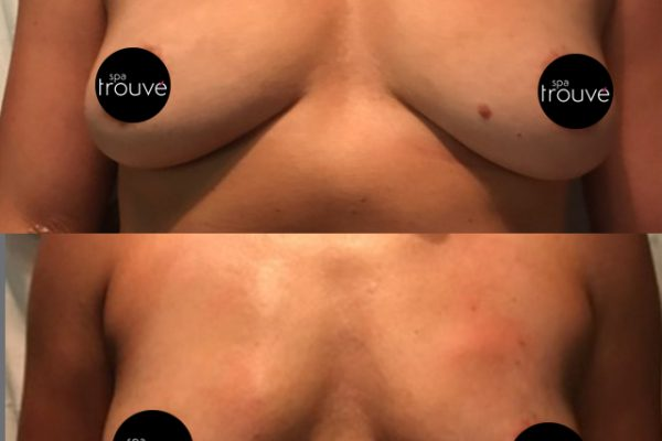 Immediate results from Vampire Breastlift®