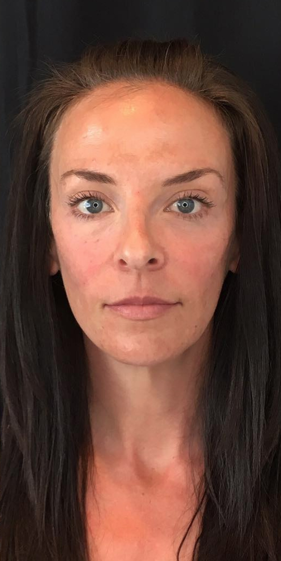 Utah Face & Lip Injections | Spa Trouvé Dermal Fillers