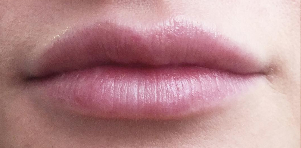 Lip Augmentation: Not Just for Celebrities