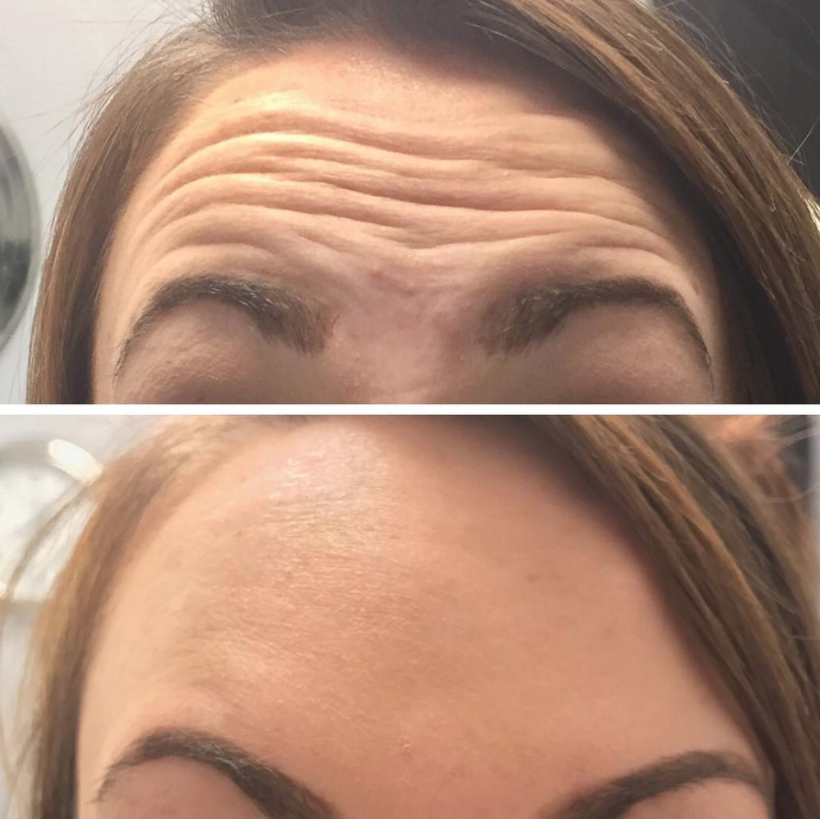 Botox – The Number One Cosmetic Surgery Procedure Choice