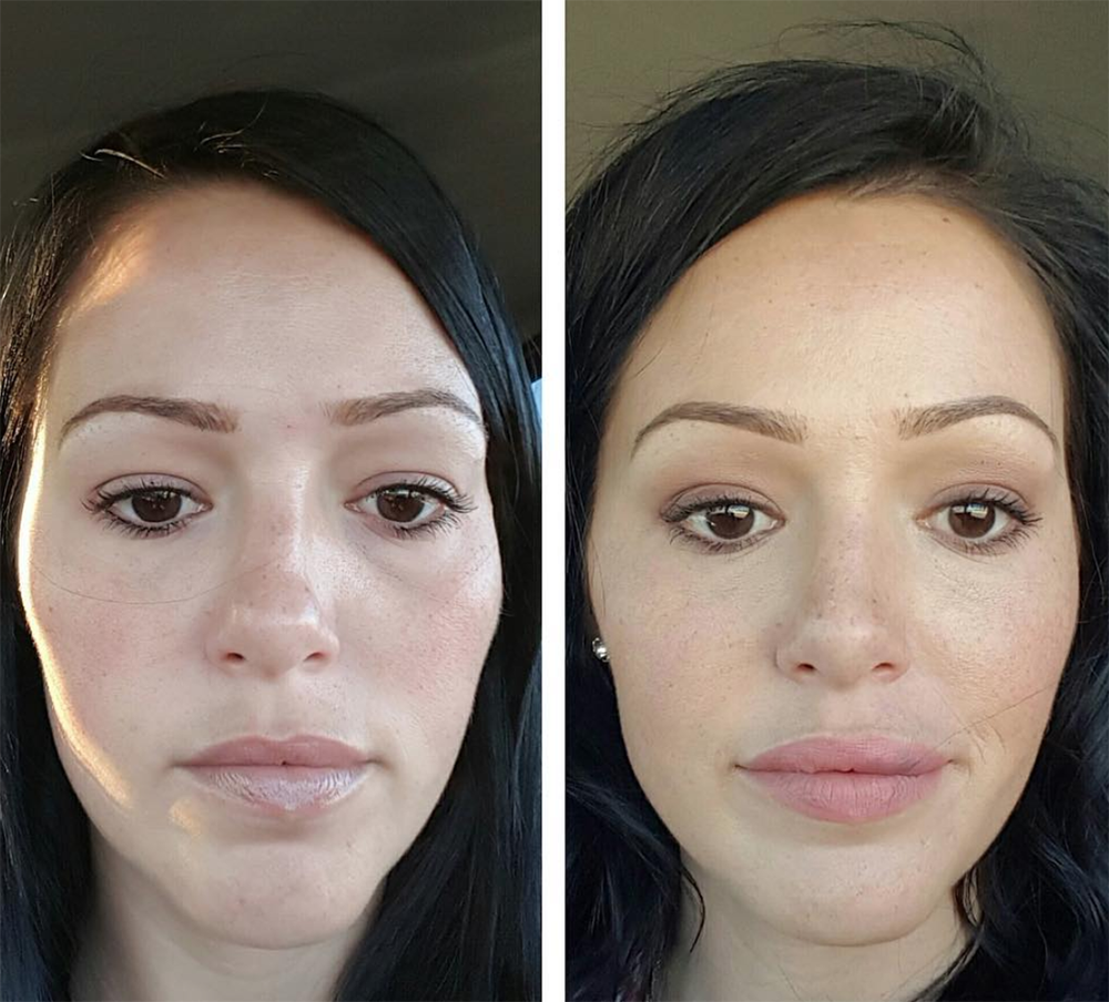 Face & Lip Injection Before / After Photos | Spa Trouvé in Utah