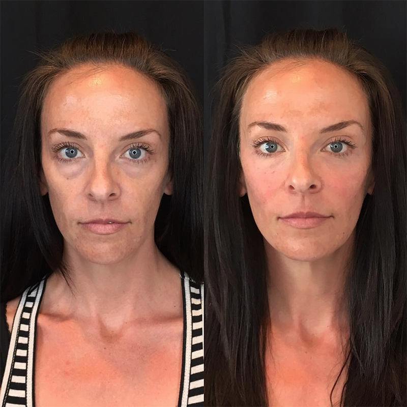 Face Amp Lip Injection Before After Photos Spa Trouv 233 In