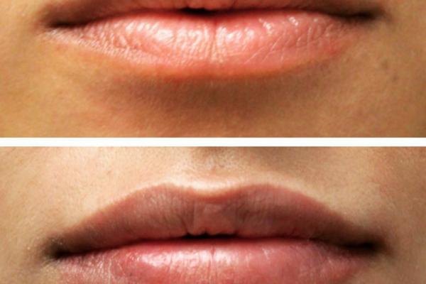 lip15