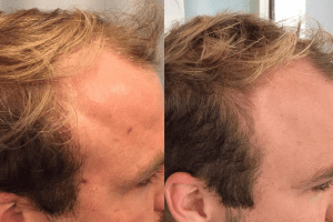 The Treatment Changing Hair Loss For Good - Spa Trouvé