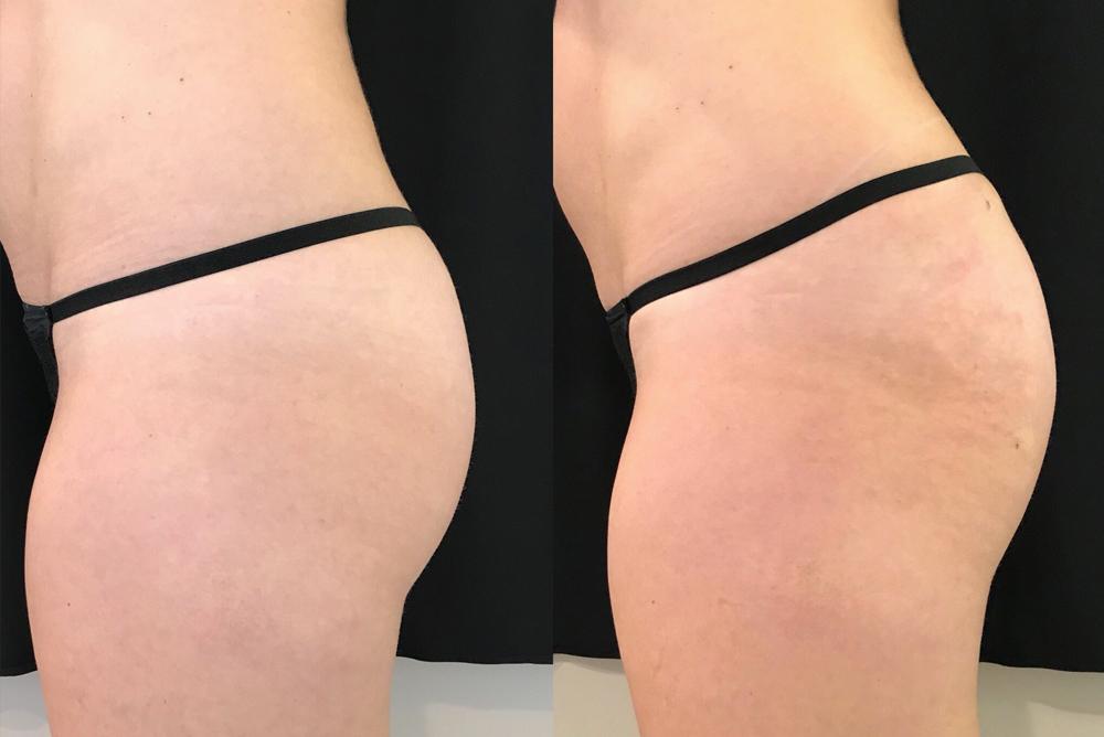 Non-Invasive Sculptra Butt Lifts