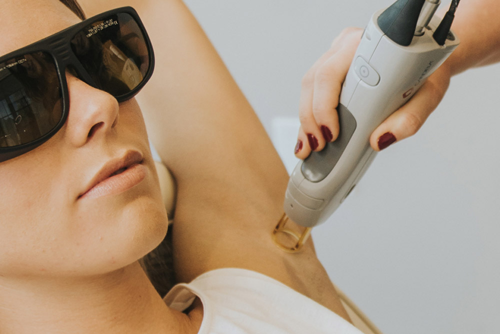 Laser Hair Removal – Why March is a great time to do it!