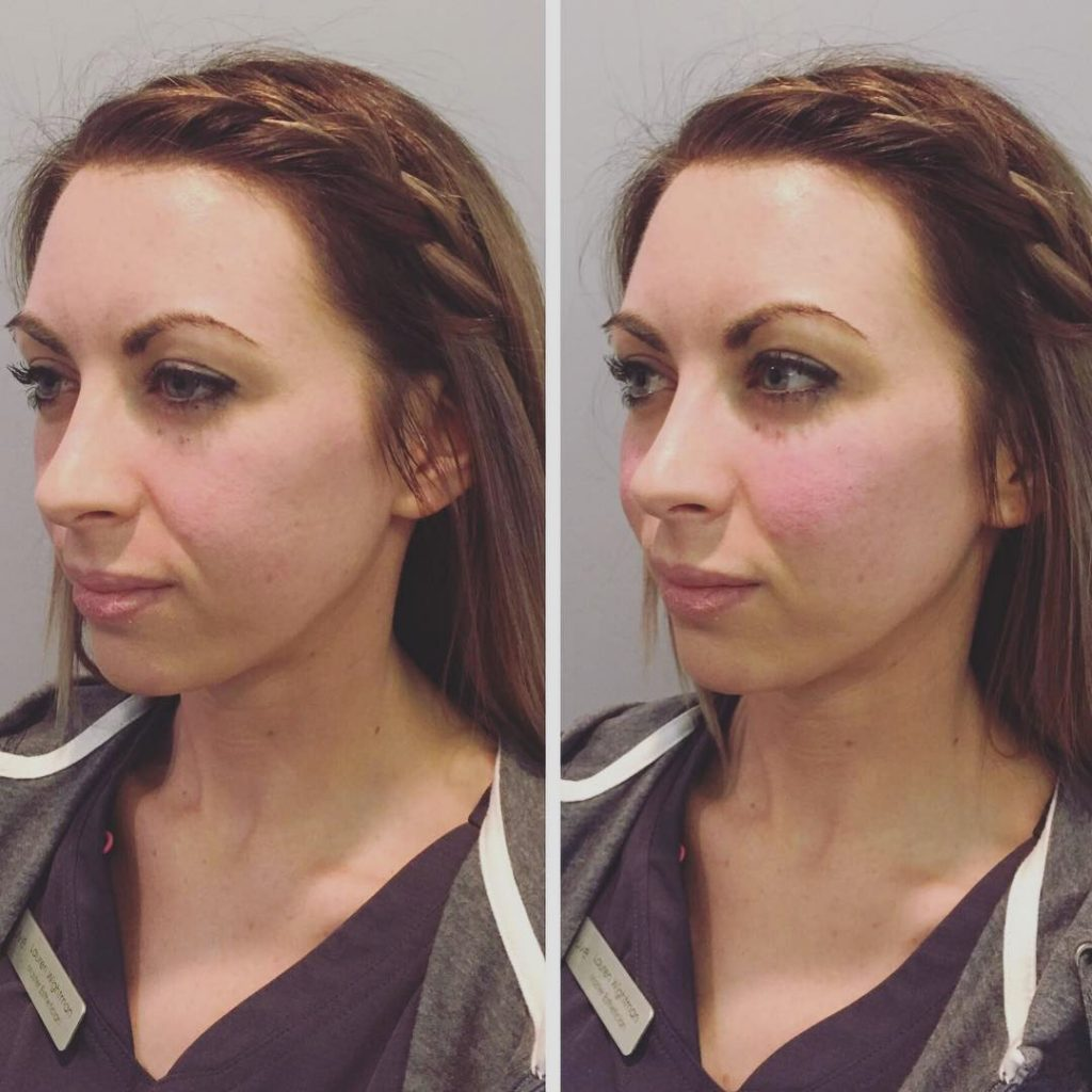 cheek injections