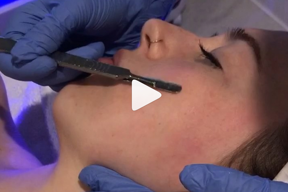 What is Dermaplaning?