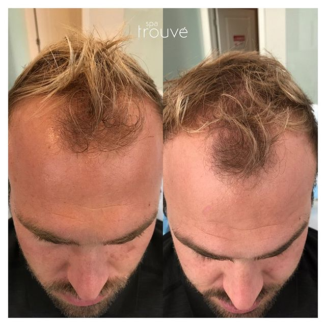 PRP Hair Restoration Treatments in Utah | Spa Trouvé