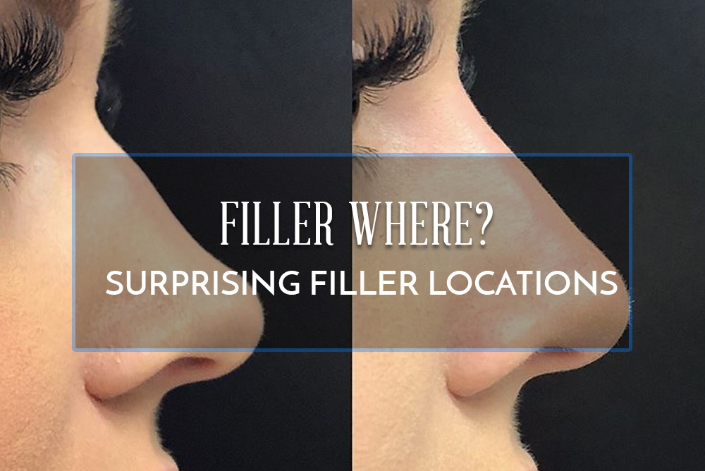 Filler where? New Filler Trends