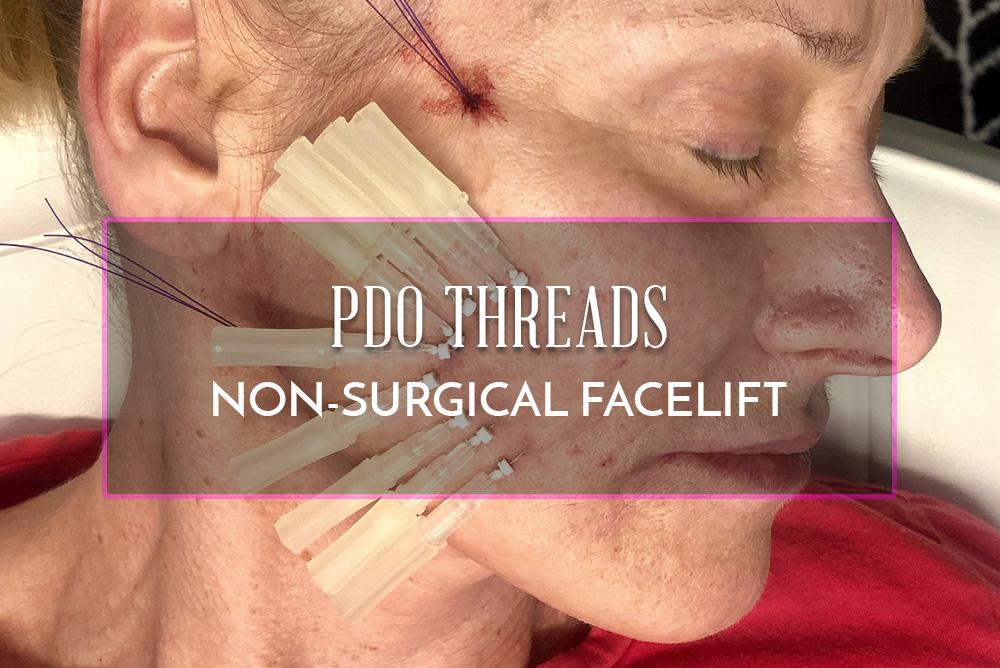 PDO Facial Threads – Non Surgical Facelift