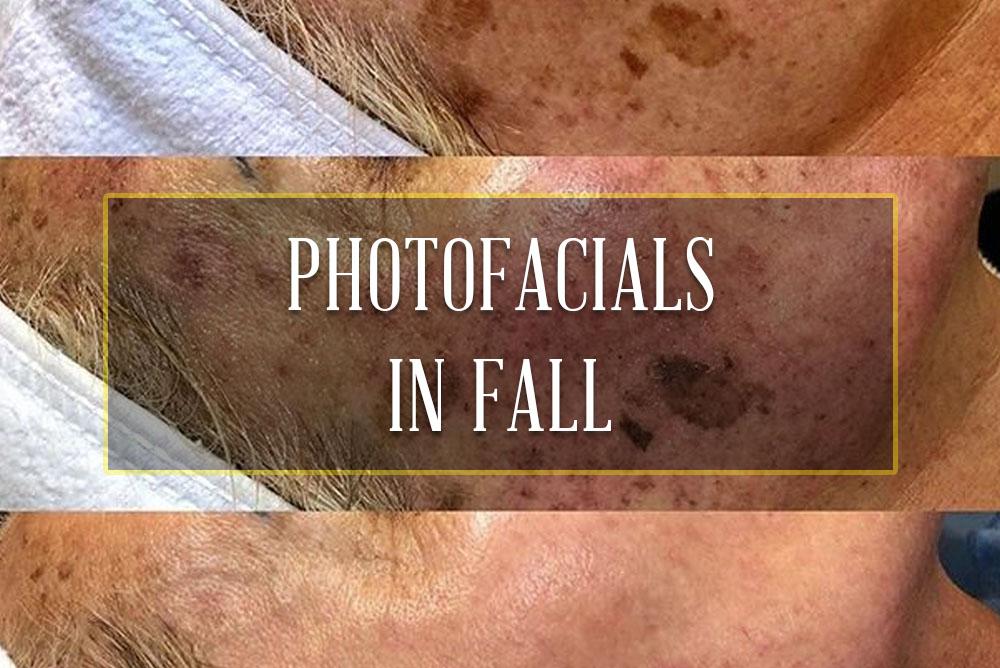 Photofacials in Fall