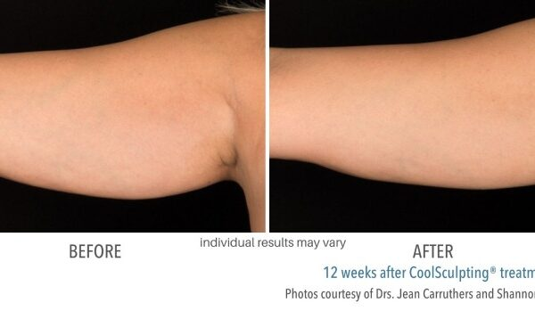 CoolSculpting Before and After 03