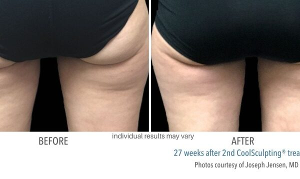 CoolSculpting Before and After 06